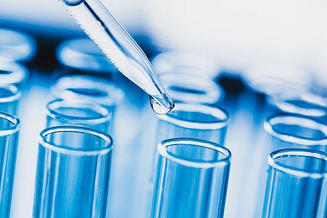 Reagenzgläser im Labor