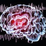 Epilepsy_awareness_concept._Brain_and_encephalography_in_epilepsy_patient_during_seizure_attack,_3D_illustration_in_purple_color