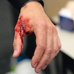 Handverletzung_Celanese.jpg