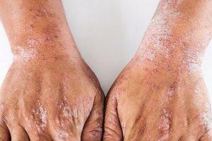 Hautkrankheiten_zaehlen_zu_den_haeufigsten_.jpg